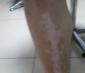诊断腿部白癜风方法有哪些